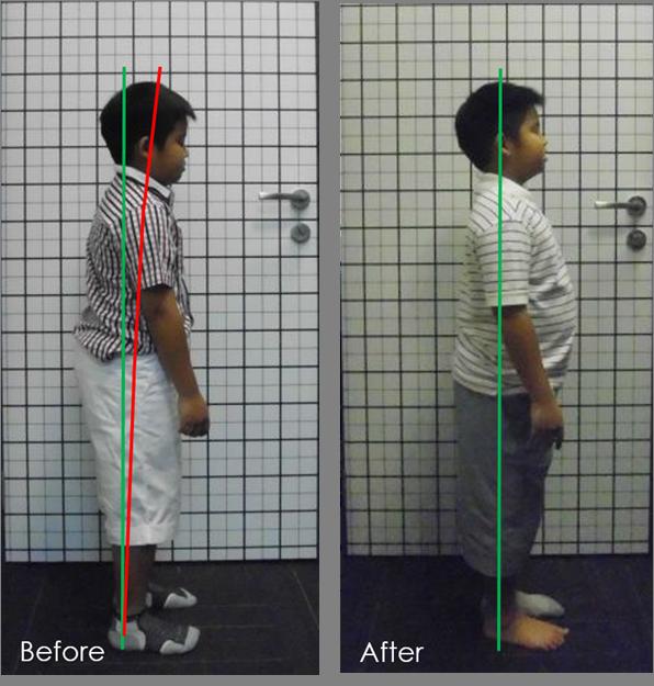 posture improvement in children